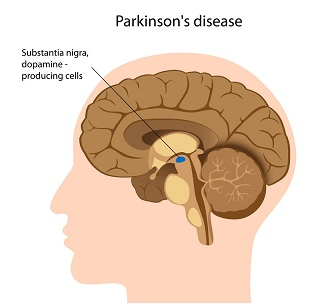 Fig. 1: The location of substantia nigra in the brain (source: parkinsoninfo.org).